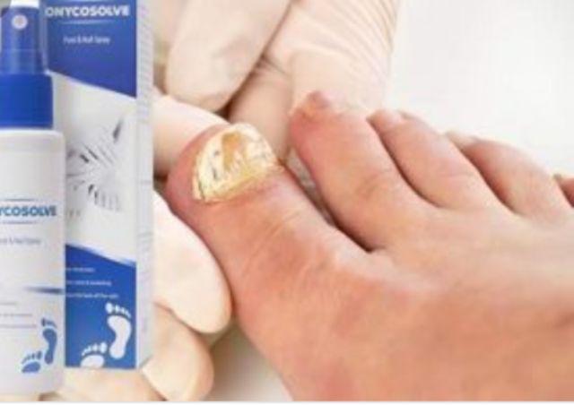 Onycosolve - en pharmacie - crème - composition